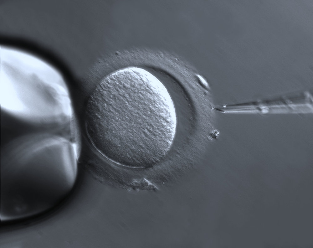 Human oocyte in vitro fertilization. - Image Credit:    Ziess Microscopy/Flickr ,  CC BY-SA