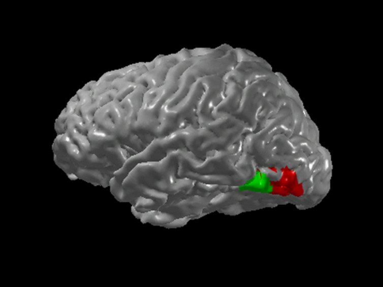 Possible neural basis for grapheme-colour synesthesia. The green region is the visual pathway involved in recognising letters and numbers (graphemes) while the red one is involved in colour processing. - Image Credit: Edhubbard at English Wikipedia, CC BY-SA