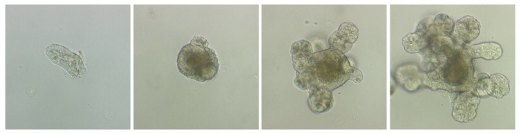 Examples of intestinal organoids at different stages of growth, with the developing buds clearly visible. Louise Thompson, Author provided