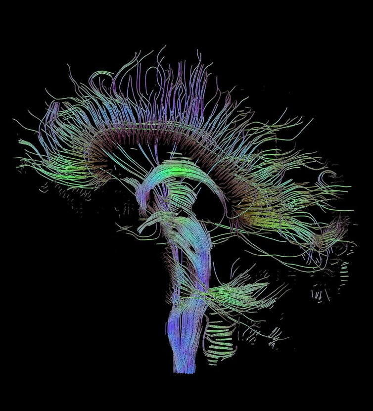 Map of neural connections. - Image Credit: Thomas Schultz/wikimedia,  CC BY-SA