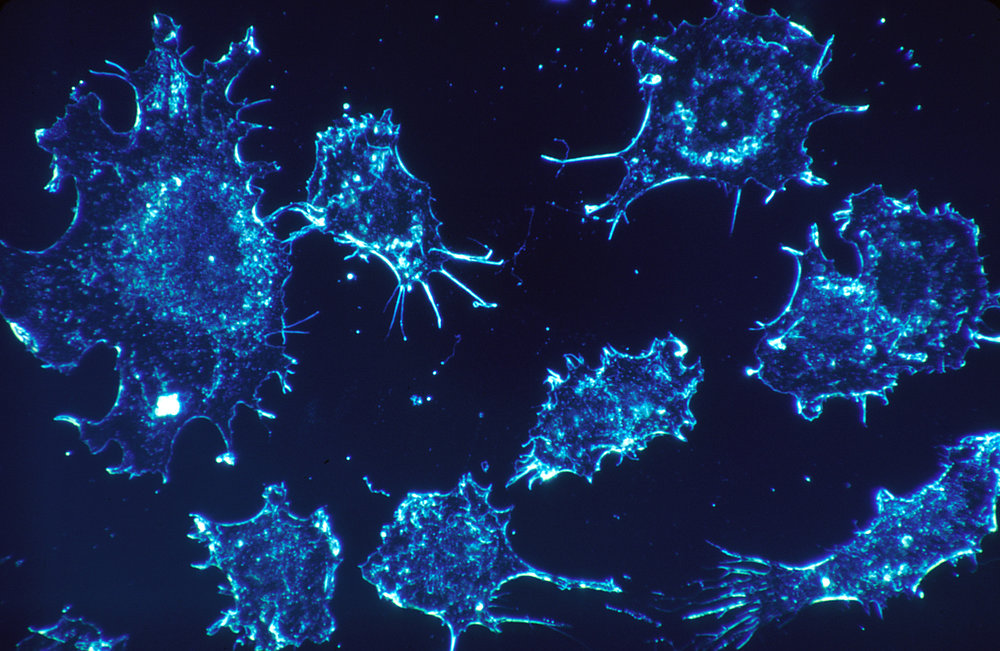 Cancer Cells - Image Credit: National Cancer Institute/WikimediaCommons