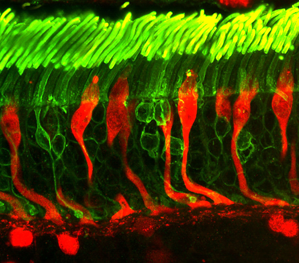 Confocal microscope image of rod (green) and cone (red) photoreceptors in a human retina. - Image Credit:  Dr. Robert Fariss, National Eye Institute, NIH ,  CC BY