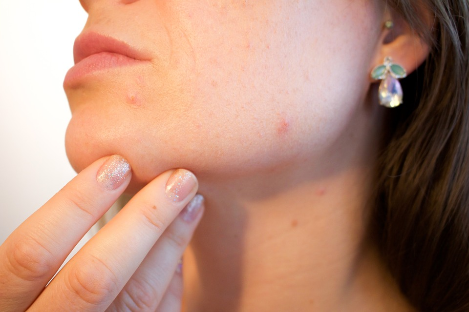 Skin irritations can cause itchy red rashes - Image Credit: Kjerstin Michael/Pixabay