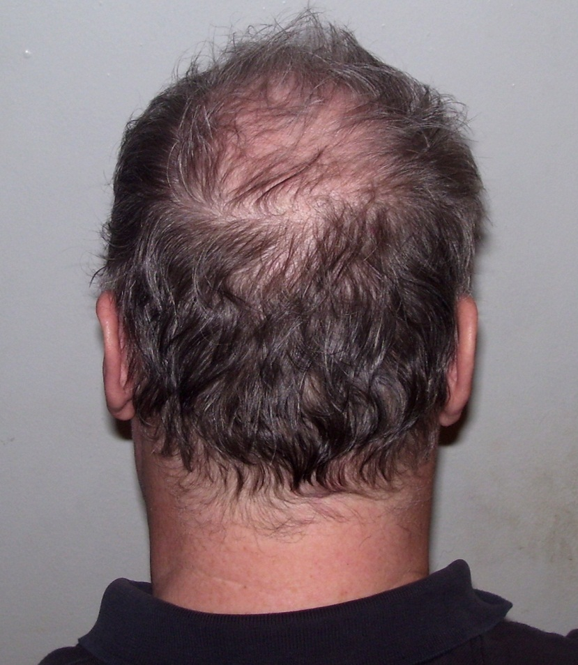 Approximately 50 million men and 30 million women suffer from hair loss - Image Credit:  Beyond My Ken via WikimediaCommons