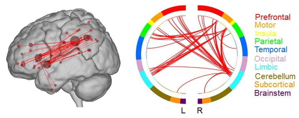 Two renderings show the lobes of the brain that are connected in the high creative network.Author provided