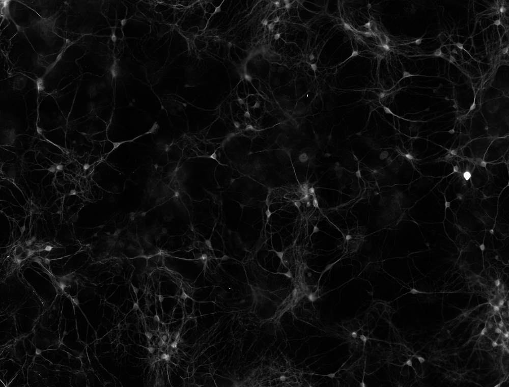 Researchers activated mouse neurons growing in a dish. - Image Credit: Kelsey Tyssowski, CC BY-ND