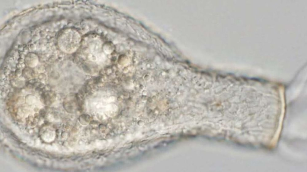 A live Padaungiella lageniformis wiggles its pseudopods. - Image Credit:Daniel J. G. Lahr, CC BY-ND