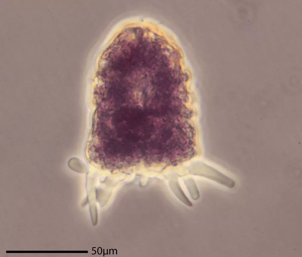 Amphizonella – identified in the authors' sidewalk sample – has a soft protective layer. -  Image Credit: Matthew W. Brown, CC BY-ND