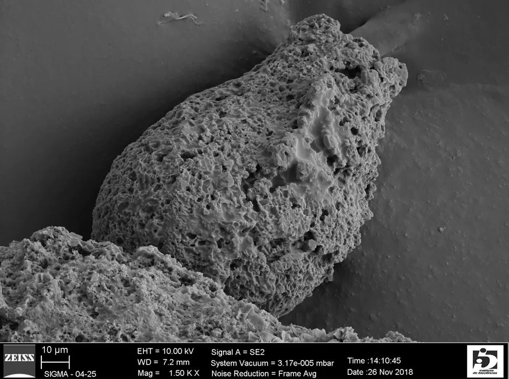 A scanning electron micrograph of a fossilized Ciclocyrillium torquata , sampled from the Urucum formation in central Brazil. - Image Credit: Luana Morais, CC BY-ND