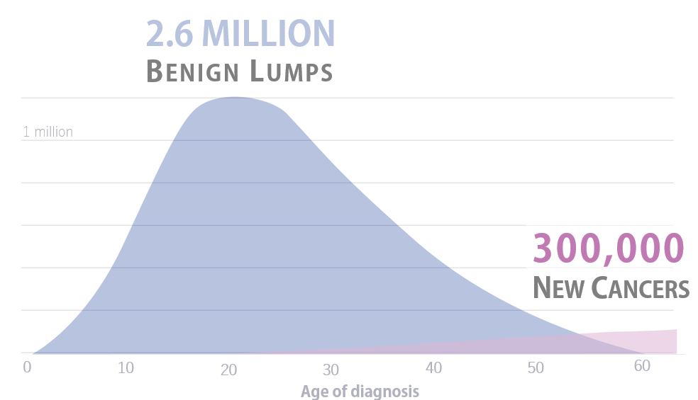 The median age of diagnosis of a benign breast disease is 22 years old, whereas the median age of newly diagnosed cancers is 62.