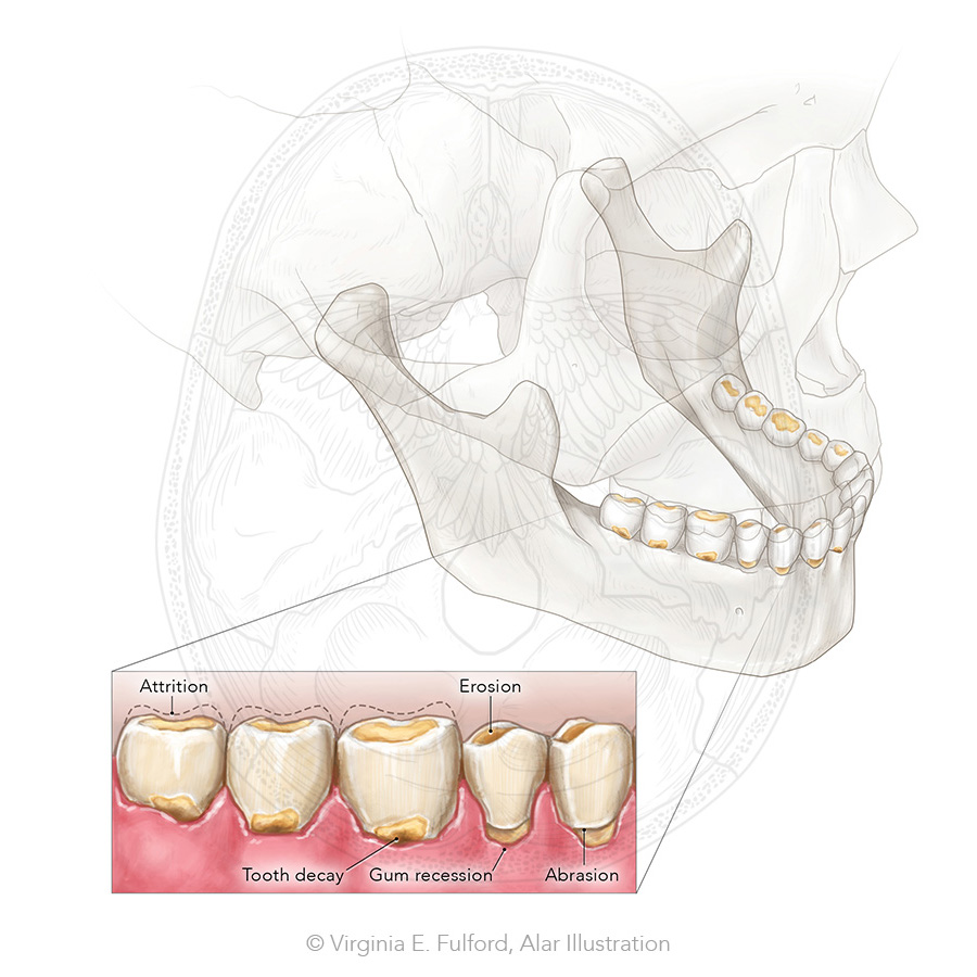 toothwear_4.jpg