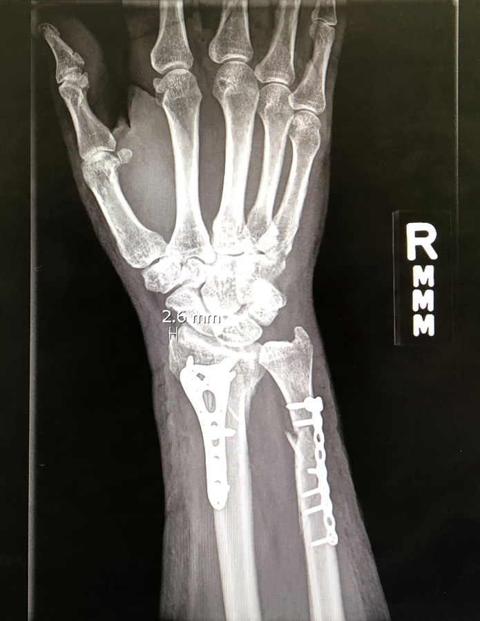 injury_0991.jpg