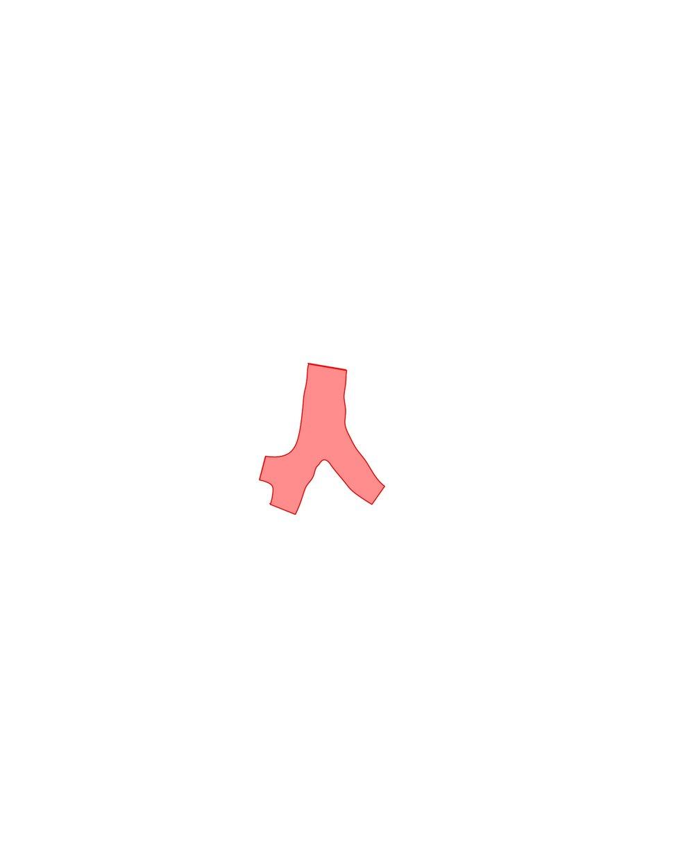 3_STENT.jpg