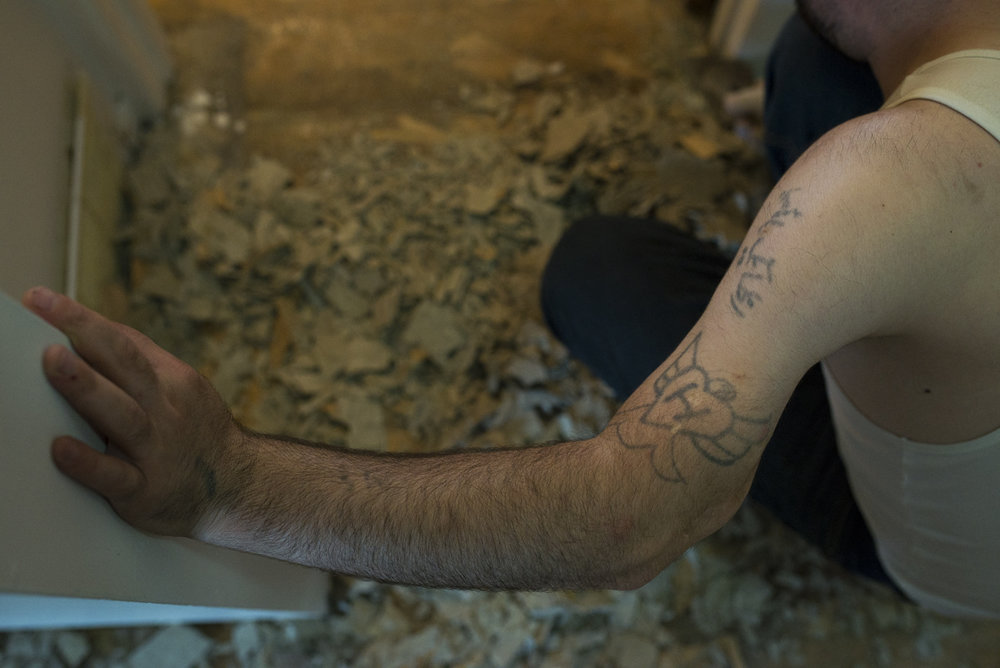 Left arm shows homemade tattoos along with deformity due to the injury.