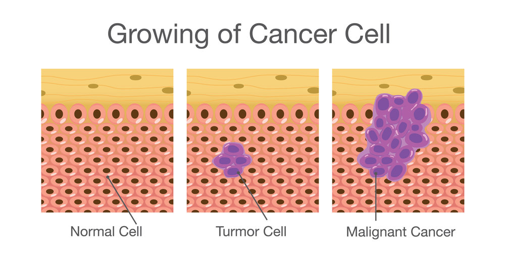 -   cellule normale           cancer in situ             cancer invasif