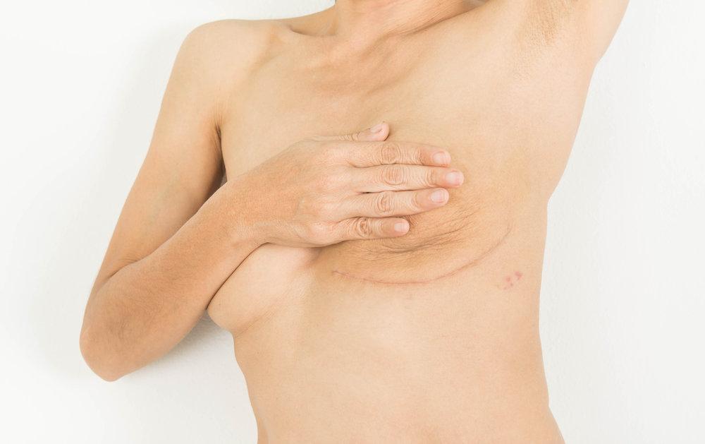 - Chez les femmes, le cancer du sein, le cancer du poumon et le cancer colorectal représentent les causes de mortalité par cancer les plus fréquentes