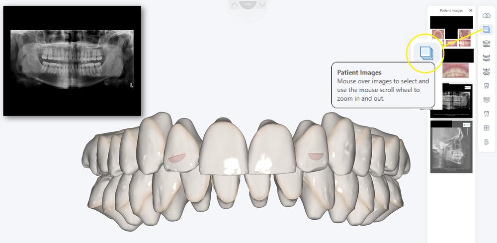Patient Images 3.PNG