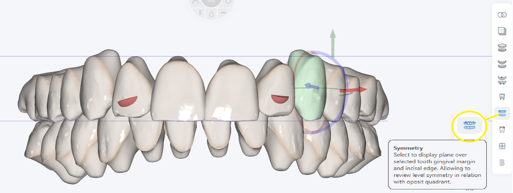 Note: Planes will travel as you move the teeth directly with tooth manipulation tool or controlled tooth movement tools.