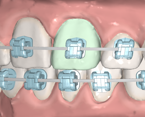 IDB tooth selection.PNG