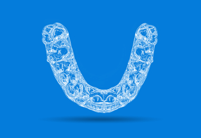 In-Office Aligners -
