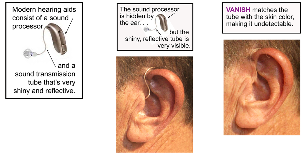 Hearing Aid appearance enhanced by VANISH