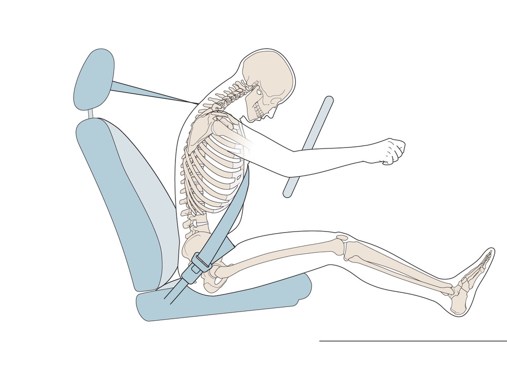 Exhibit 2.  In a frontal crash the occupants move forward with respect to the vehicle interior and the shoulder belt applies a restraining force to the clavicle, sternum and rib cage and the lap belt applies a restraining force to the pelvis.