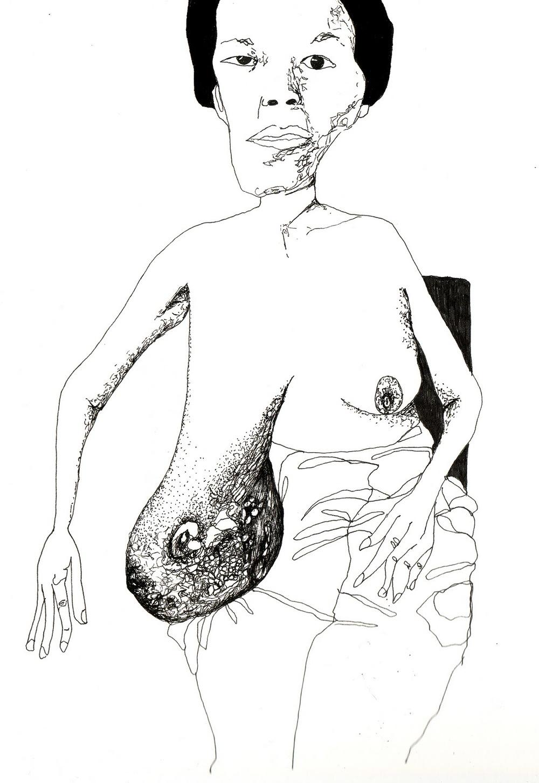 Disease11.jpg