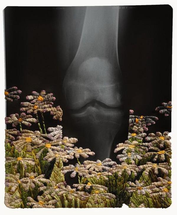 Matthew-Cox-X-Ray-embroidery5