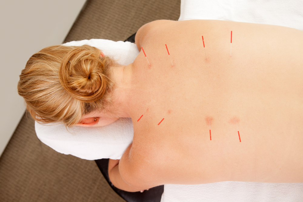 acupuncture in skin 3 large.jpg