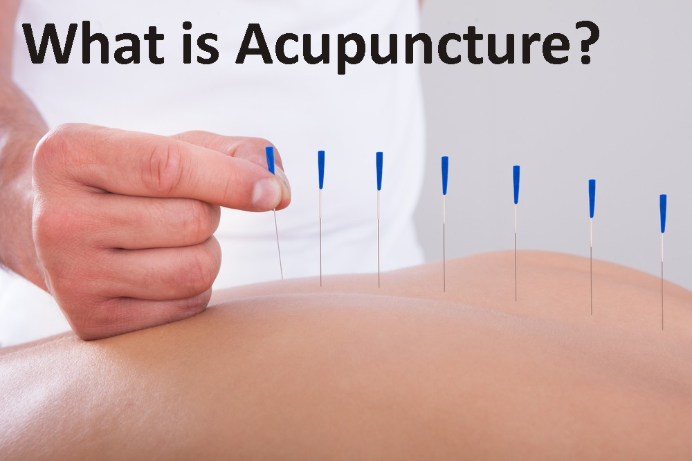 what is acupuncture.jpg