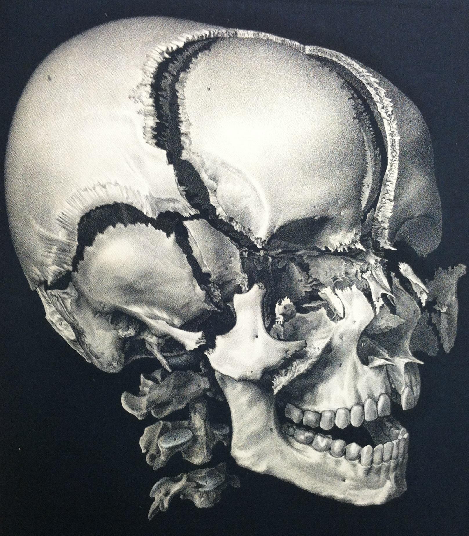 Exploded_skull