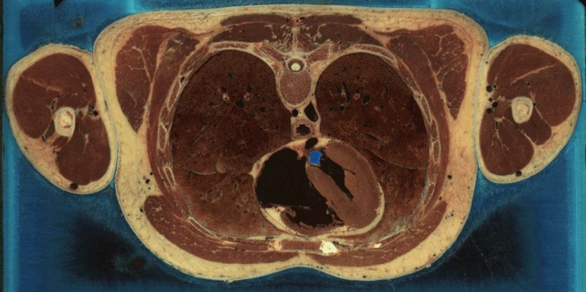 Thorax Cryosection - The Visible Human Project male dataset (courtesy of http://www.nlm.nih.gov)