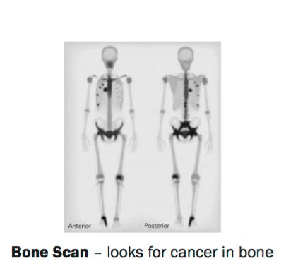 FIGURE 1  Bone Scan – looks for cancer in bone