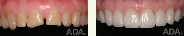 Before veneers                                                                             After veneers