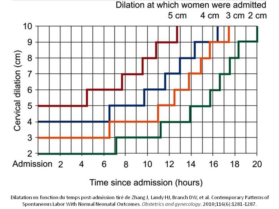 Dilatation selon le temps