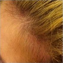Después de 3 sesiones. El crecimiento del cabello en el entorno empieza a ser evidente