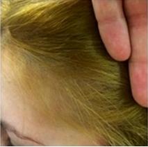 Después de 6 sesiones.Apreciamos la cantidad de cabello nuevo en la zona afectada y como el ciclo de crecimiento es superior al habitual
