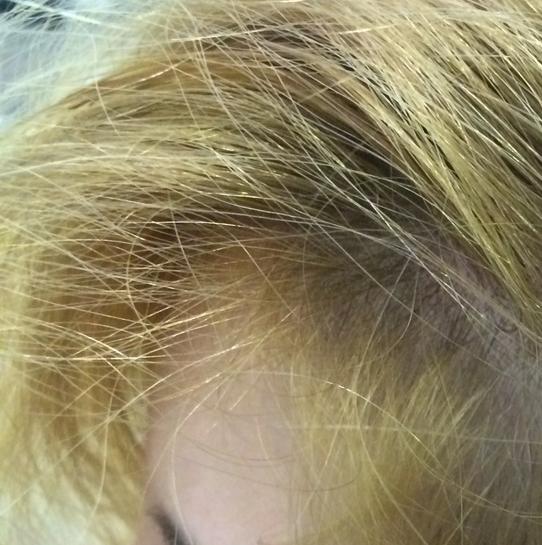 Después de tan solo 8 sesiones podemos apreciar gran cantidad de cabello nuevo en la zona, más fuerte y resistente