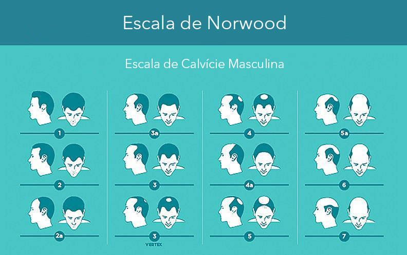 escala de norwood
