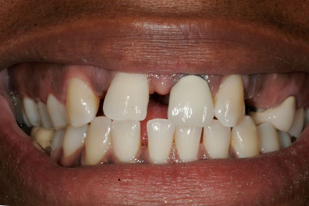 angela - dental implants 5.jpg