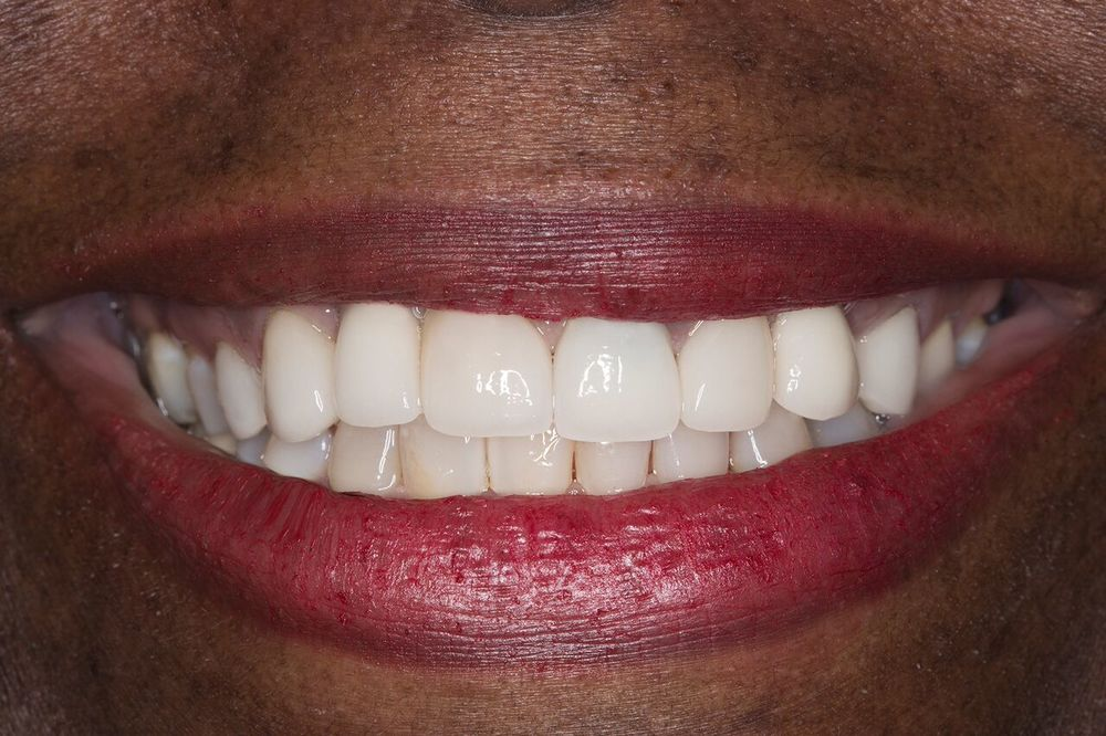 angela - dental implants 3.jpg