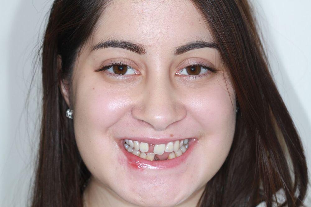 Caityln - Sedation Dentistry 2.jpg
