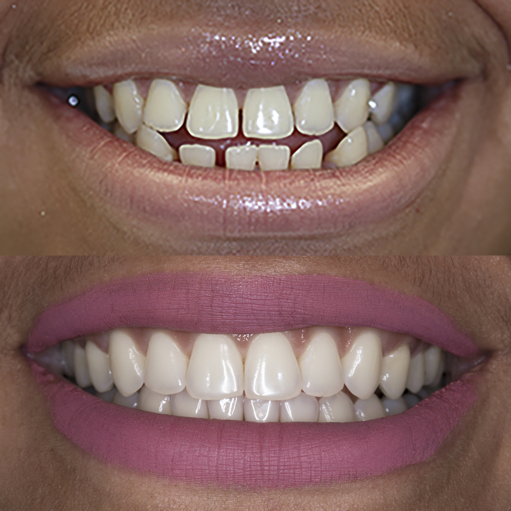 invisalign manhattan