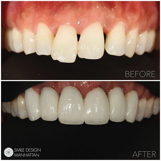 "#Periodontal disease is often genetic in origin. Many times people think they are doomed to have ""bad teeth"" or even a denture just because their parents did. We did this case with Dentistry by @smiledesignmanhattan #atlantisabutments and porcelain by @jasonkimsmileartist #allsmiles 😊"