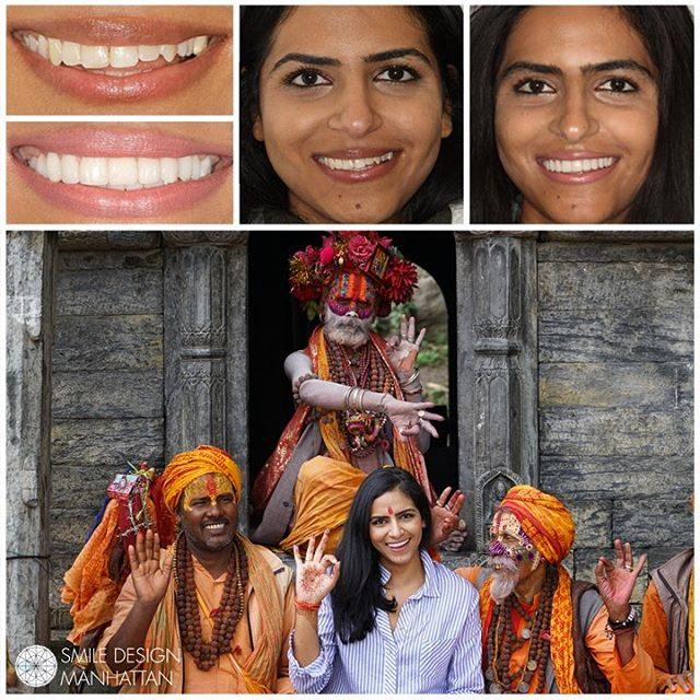 A beautiful smile has the power to captivate... it is your greatest statement piece. When fashion, beauty, and art collide to create a flawless and natural look for our patient @moniszahira with porcelain #veneers... the smile says it all.