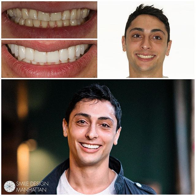 This is everything!!! Amazing transformation to get our patient summer ready using porcelain veneers. This is why we do what we do.. it's an extension of who we are. It's more than fixing teeth. It's about expressing who you are... and this smile embodies pure confidence.  #dowhatyoulove #veneers #cosmeticdentistry #dentist #dentistry #nyc #smile #smiledesignmanhattan #yogi #smilemakeover #summerswag 📸@yeahokayali 😁@yogimahvidds