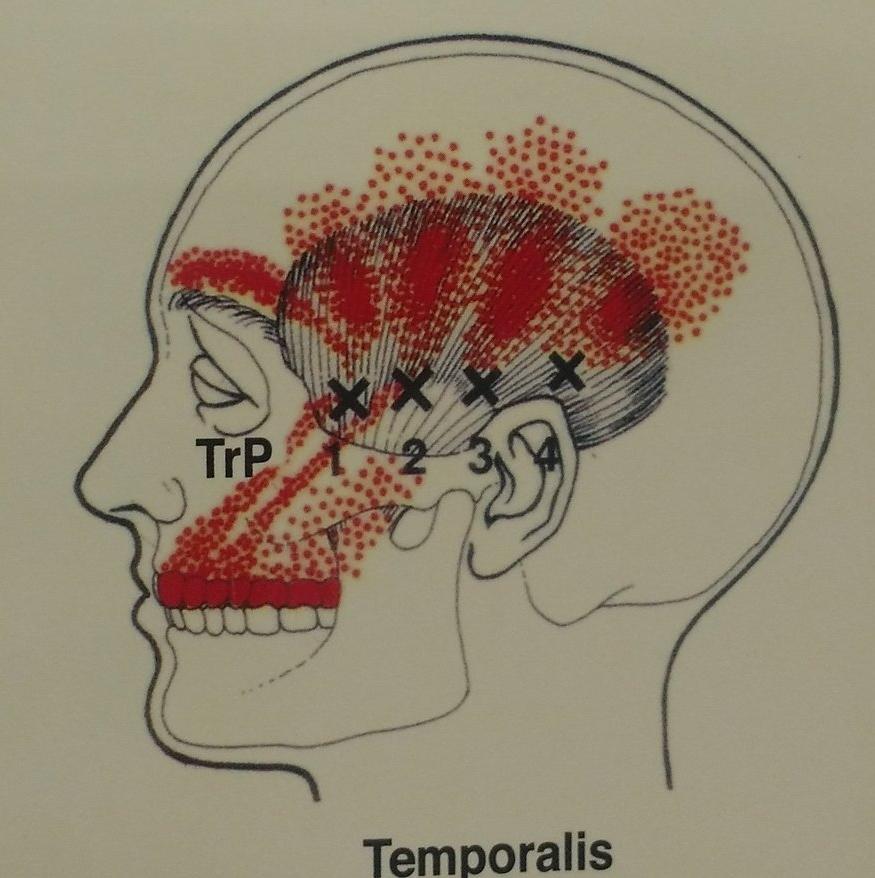 Common Temporalis Trigger Points
