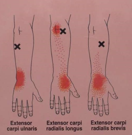 Common Trigger Points of the forearm extensors and their referral pattern.