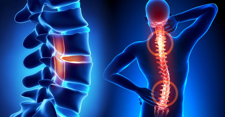 Spine Baton Rouge Orthopaedic Clinic