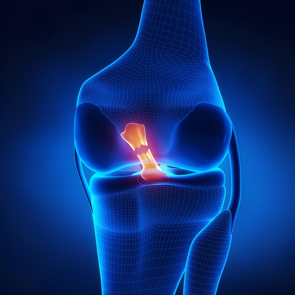 knee_pain.jpg